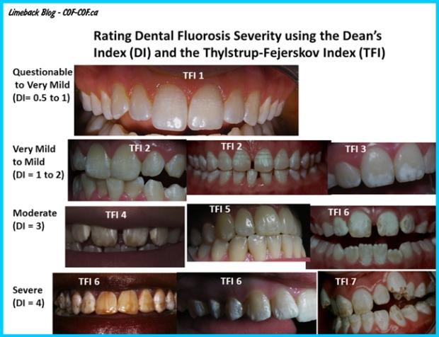 Rating-Dental-Fluorosis-Limeback-Blog-COC-COF1